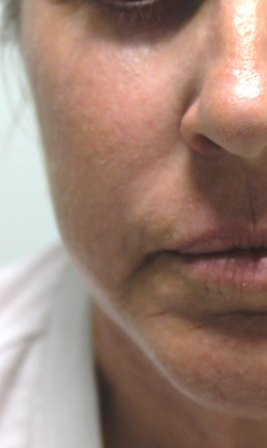 co2 fractional laser resurfacing austin