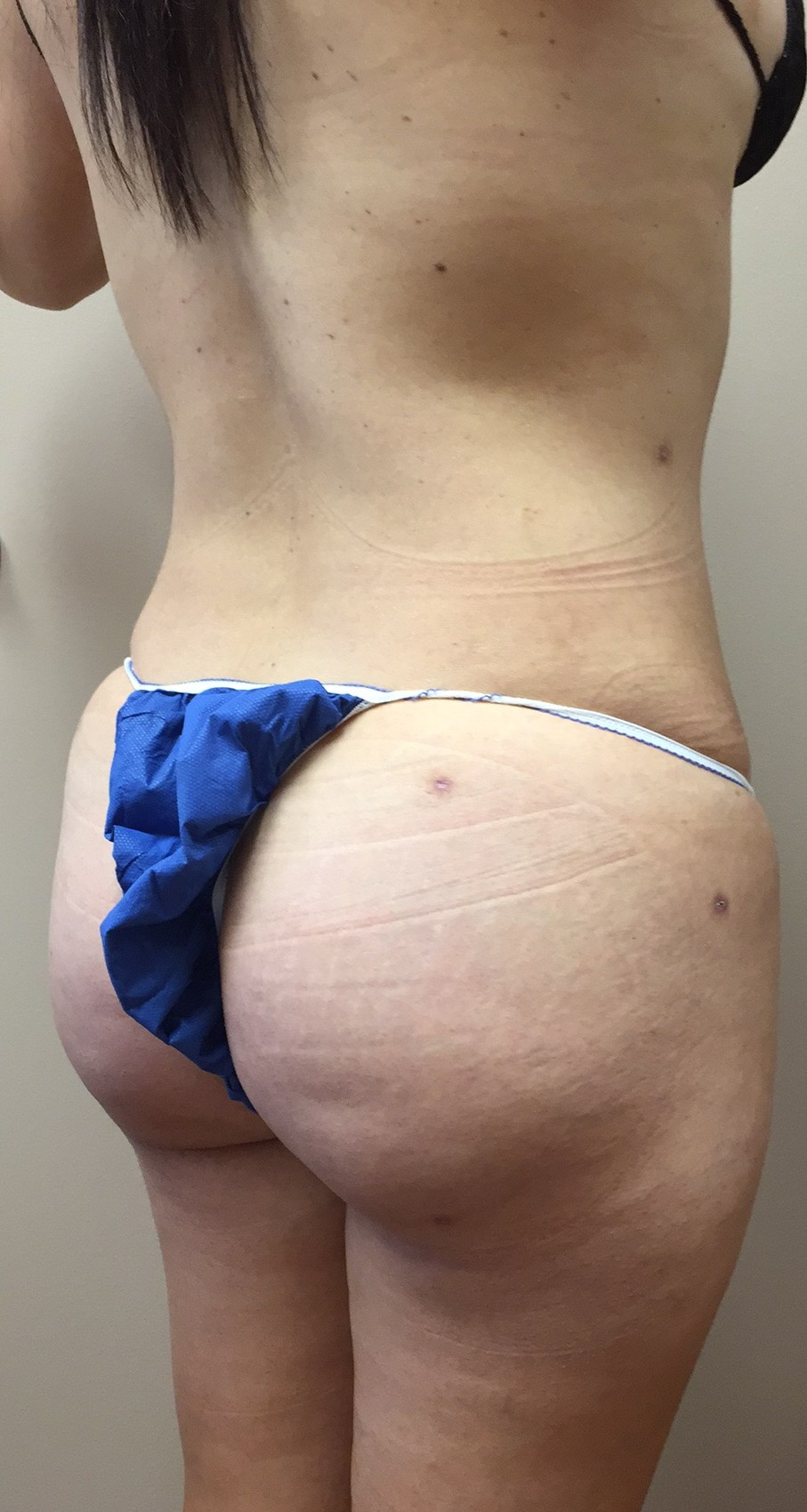 brazilian butt lift surgery