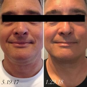 CoolSculpting Chin